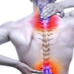 تشخیص و درمان آرتروز ستون فقرات | بهترین متخصص کایروپراکتیک