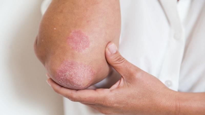 تشخیص و درمان آرتریتپسوریاتیک ( بیماری ورم مفاصل )