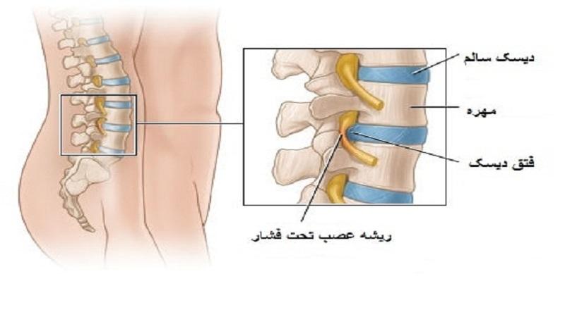 درمان دیسک