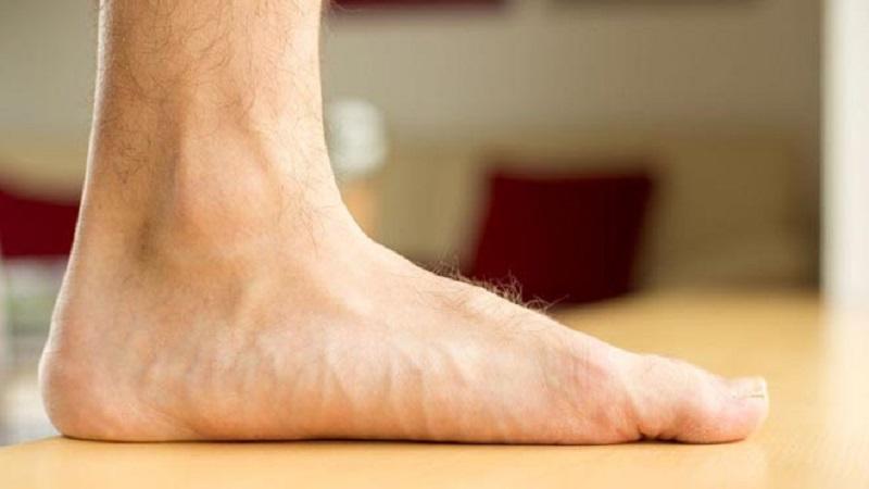درمان کف پای صاف | بهترین متخصص کایروپراکتیک