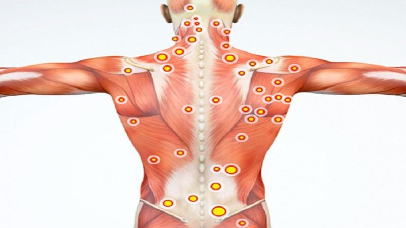 سندرم درد مزمن (درد عضلانی)