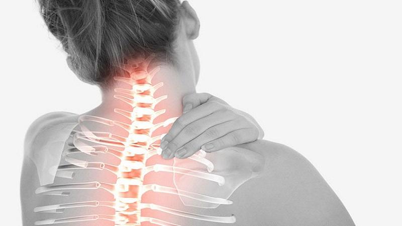 علل و علائم آرتروز ستون فقرات | بهترین متخصص کایروپراکتیک