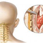 عوارض و علل تومورهای نخاع | بهترین متخصص کایروپراکتیک