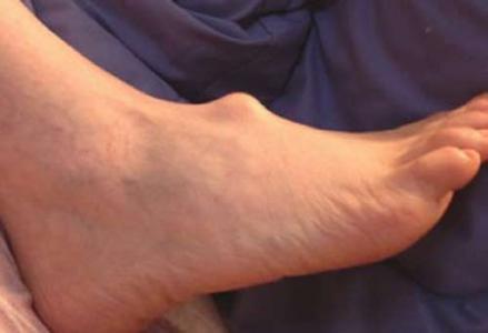 علل درد مچ پا | بهترین متخصص کایروپرکتیک