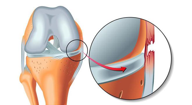 آسیب دیدگی رباط داخلی زانو | بهترین متخصص کایروپراکتیک