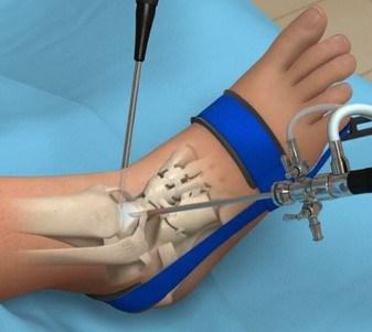 زمان جراحی مچ پا به پیشنهاد پزشک | بهترین متخصص کایروپراکتیک